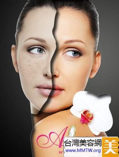 祛斑的小竅門 教你分類治療臉上斑點