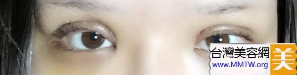 前方高能!!!全切雙眼皮+取假體鼻修復改造記