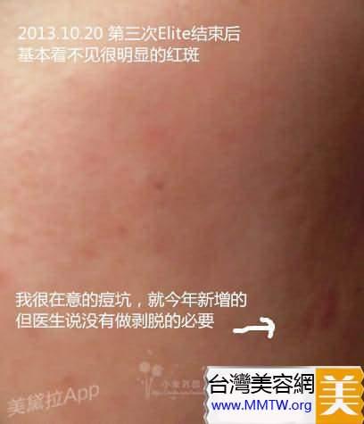2年醫美抗痘:光子嫩膚+果酸煥膚