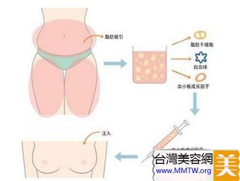 脂肪移植那些事兒:自己的脂肪也有風險