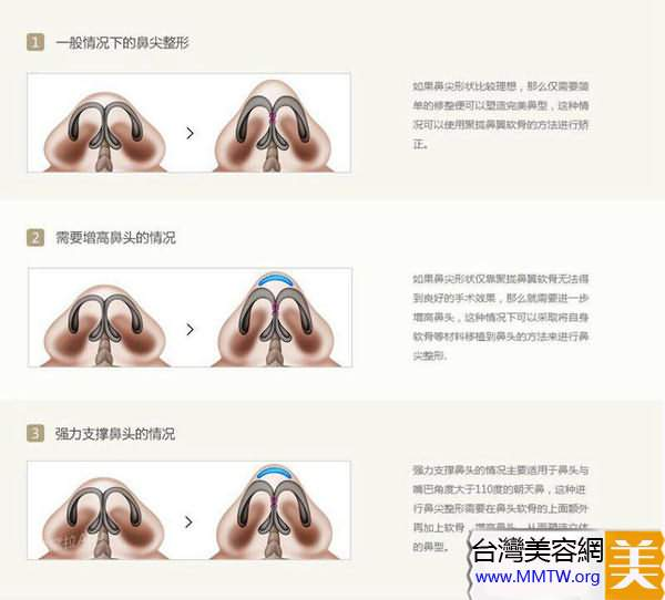 鼻尖整形應該首選自體組織移植