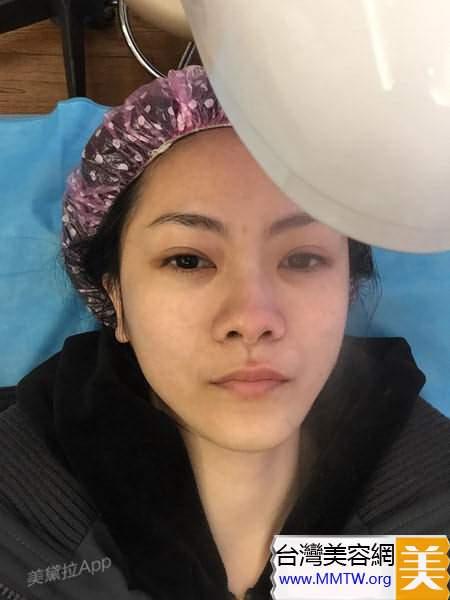 探子歸來:格萊美光子嫩膚體驗