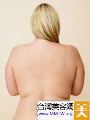 抽脂減肥要慎重 5個不得不知的抽脂秘密