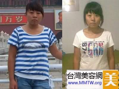 減肥前後對比
